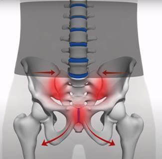 the impact of a belly band on the sacroiliac joint